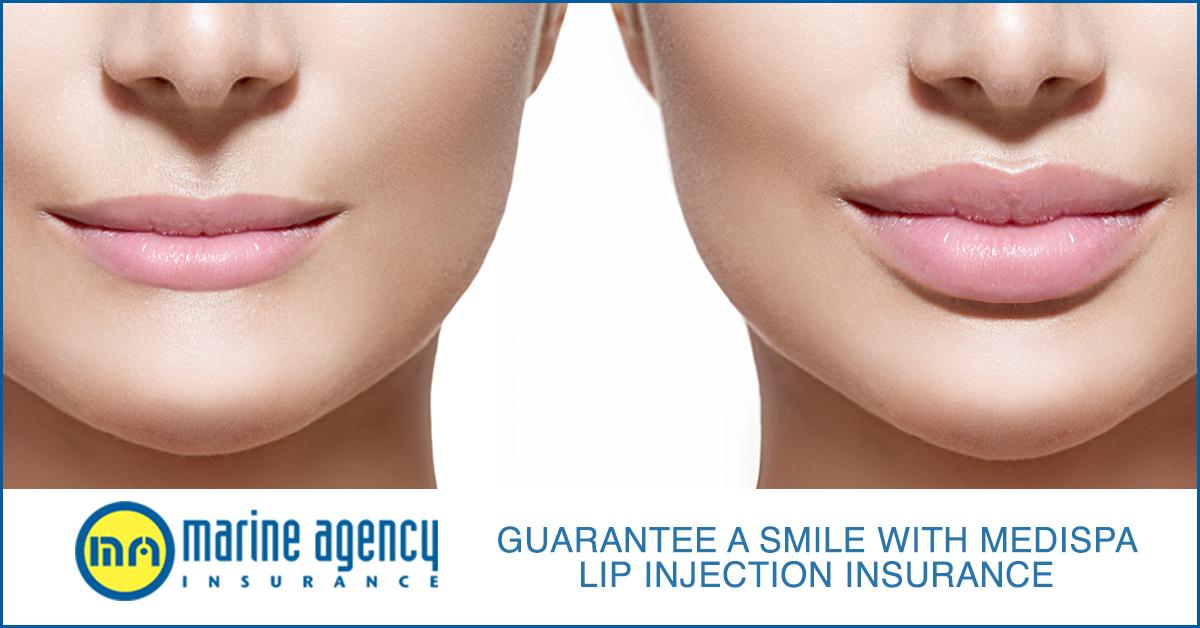 ma-lip-injection